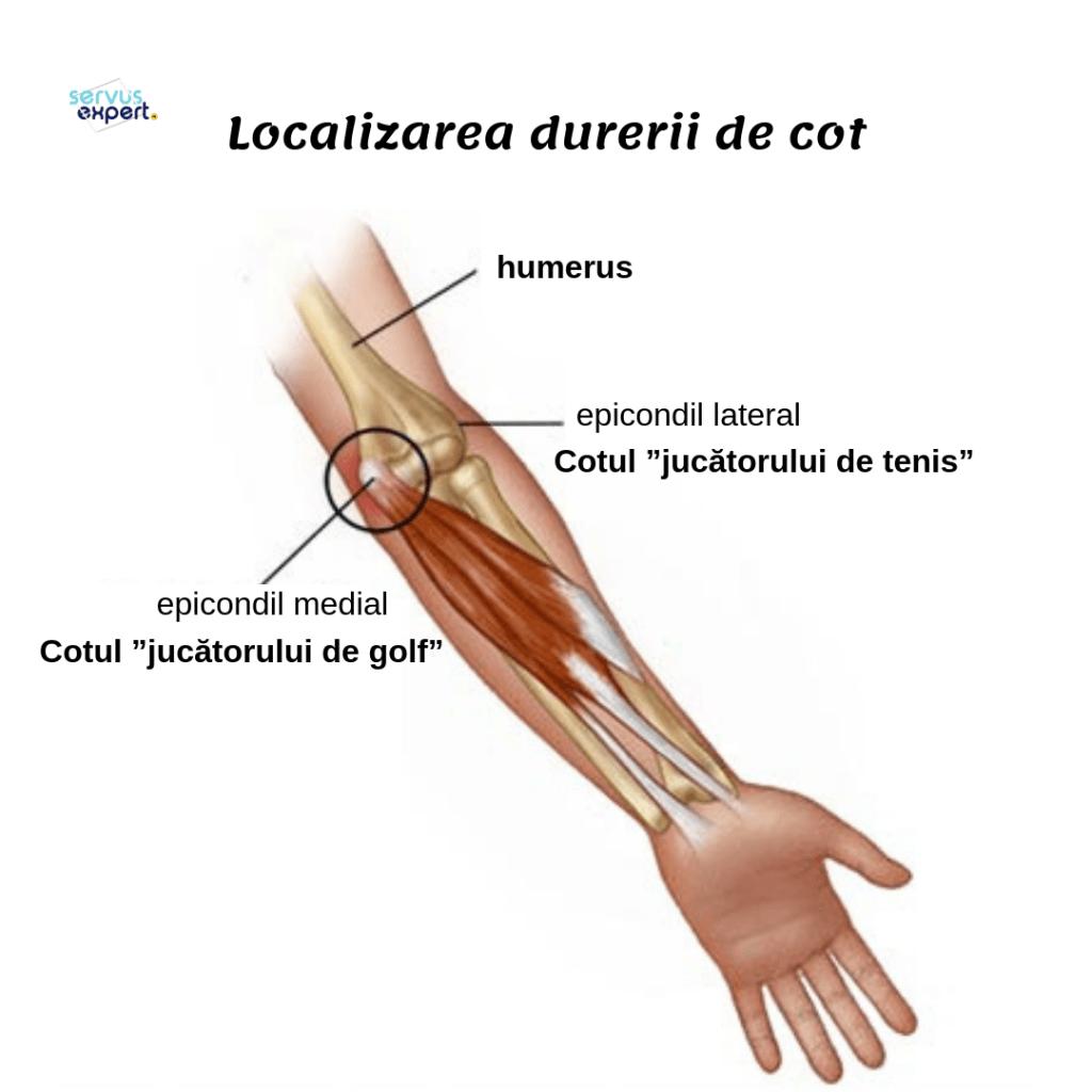 durere la nivelul articulației cotului și a mâinii