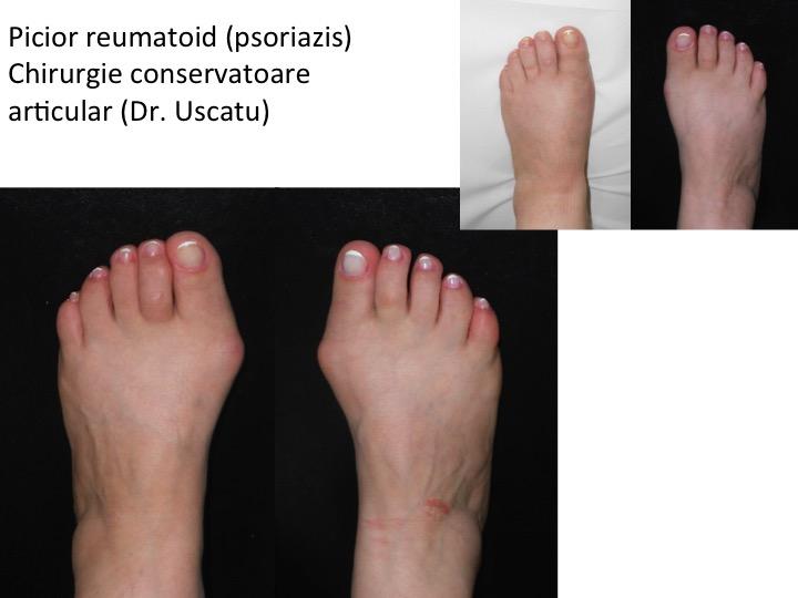 artrita tratamentul medicamentelor deget de la picior