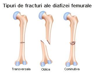 Fractură de istoric medical la genunchi