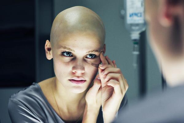 Chimioterapie și dureri articulare
