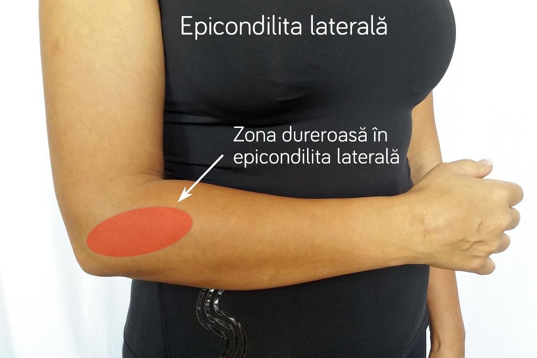 medicament pentru epicondilita articulației cotului