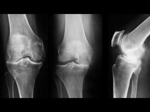 Cum să tratezi artroza novice a articulațiilor