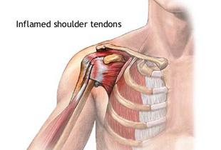 boala tendoanelor umărului
