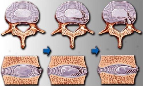 Preparate pentru tratamentul înfometării de oxigen a creierului - Complicații -
