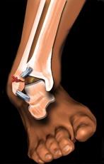 Dislocarea articulației gleznei: simptome, tratament și prim ajutor