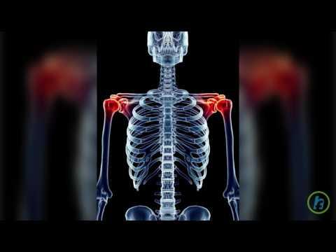 artroza deformiră a articulației umărului artroza deformantă a tratamentului umărului
