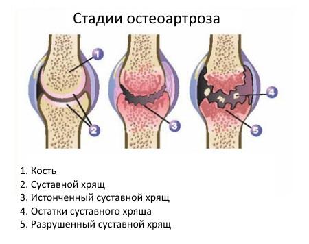 как лечить остеоартроз локтевых суставов