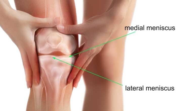 deteriorarea meniscului articulației genunchiului stâng tratamentul articulațiilor