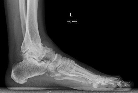 scleroza subcondrală a tratamentului articulației gleznei