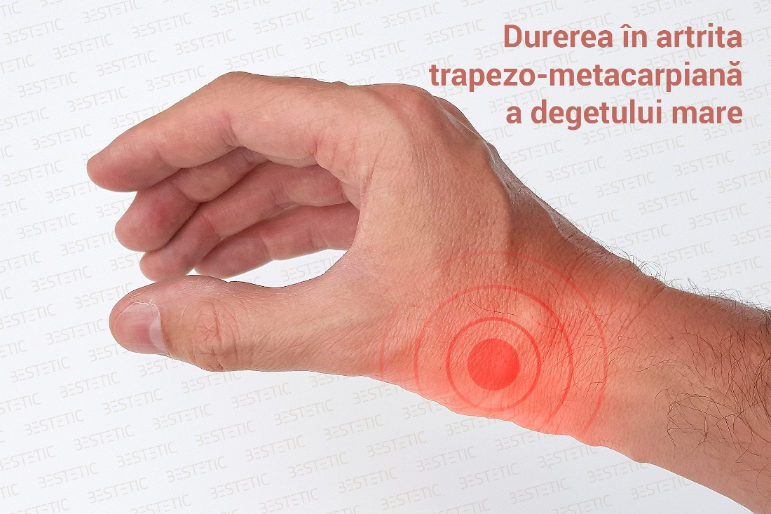 artrita articulației cheie