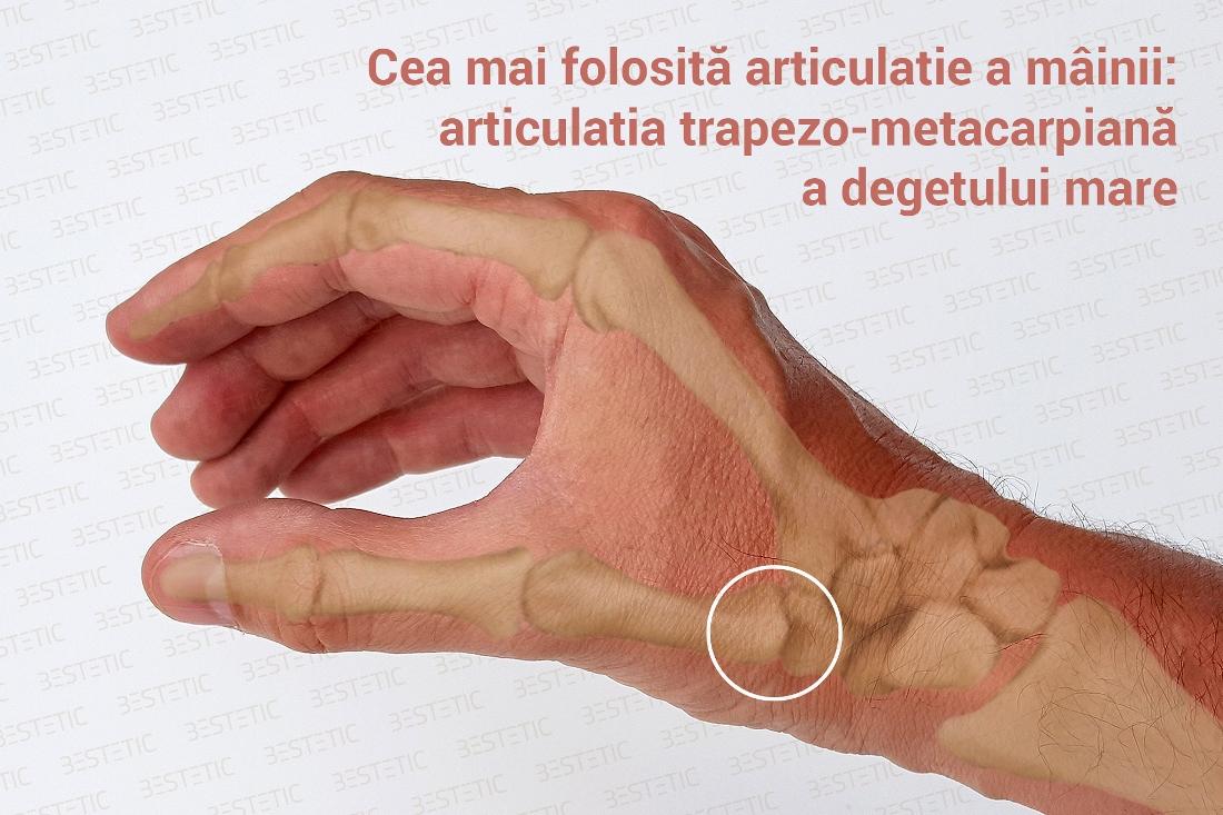 artrita tratament la încheietura mâinii