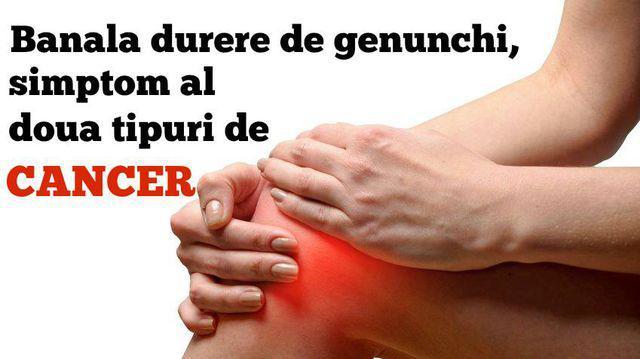 unguent pentru ameloteksul articulațiilor medicamente pentru tratarea durerii la cot