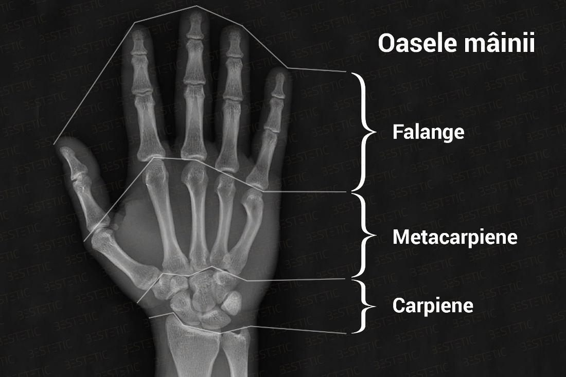 Refacerea mobilității încheieturii după fractură, Diagnosticarea fracturilor manuale