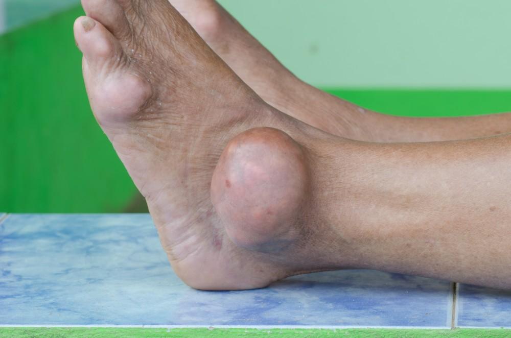 dureri de umăr ibuprofen durere și inflamație la genunchi