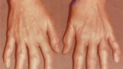 artrita tratament artroză mâini
