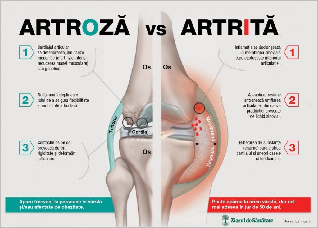cum să slăbești cu artroza articulației șoldului