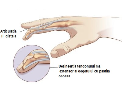 degetul și umflarea în articulație