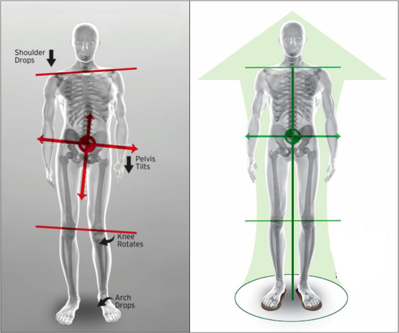 Instabilitatea cronica de umar - Kinetic Durere în articulațiile umărului cu scolioză
