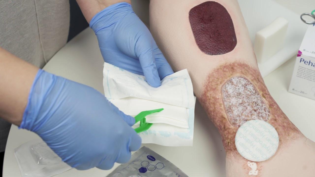 artroză cu tratament ulcer trofic blochează durerea în articulația umărului ce este