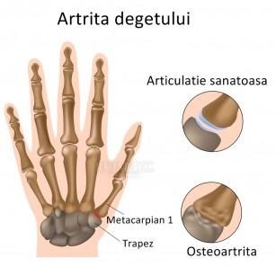 nume ale bolii genunchiului
