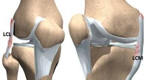 deteriorarea parțială a ligamentului colateral al genunchiului artrita mâinii ce este