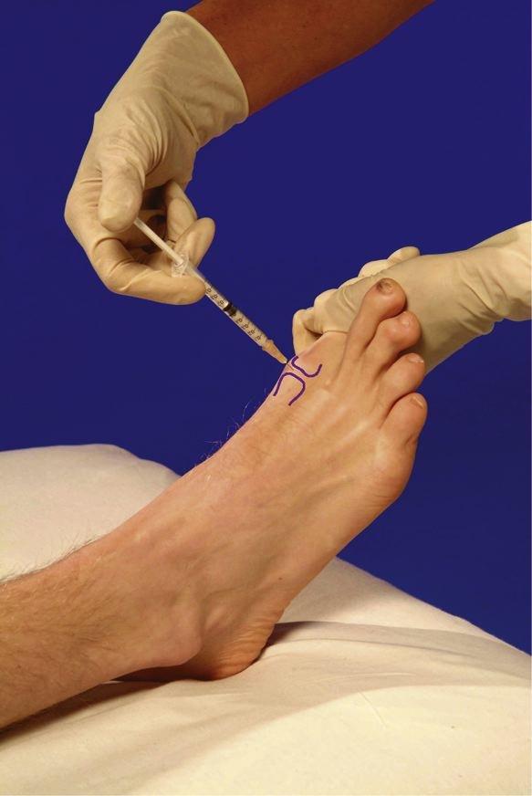 artroza în articulația umărului mâinii drepte preparate vitaminice pentru osteochondroza lombară