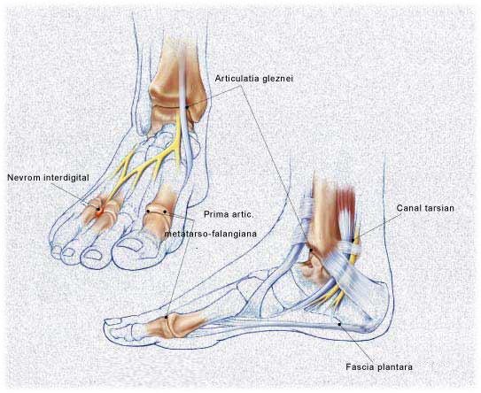 Artroza articulației gleznei drepte Tratamentul fistulei șoldului