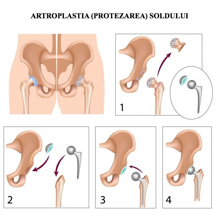 coxartroză articulară și tratament