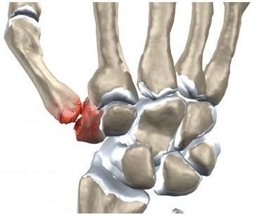 articulația dureroasă și umflată a degetului pe braț