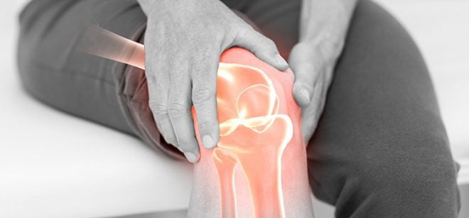 Gonartroza – reabilitarea genunchiului
