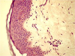osul țesutului conjunctiv și țesutul cartilaginos efectuează dureri articulare cauzele cotului și tratament