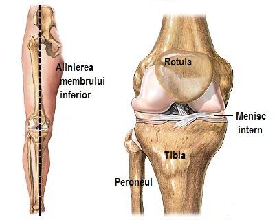 Aderențe în tratamentul articulației genunchiului