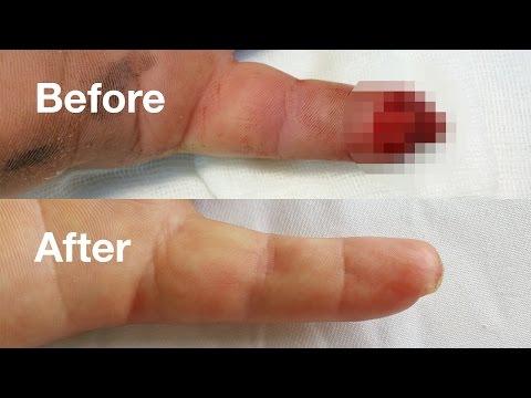 Leziunile articulației gleznei, Bump pe tratamentul articulației gleznei