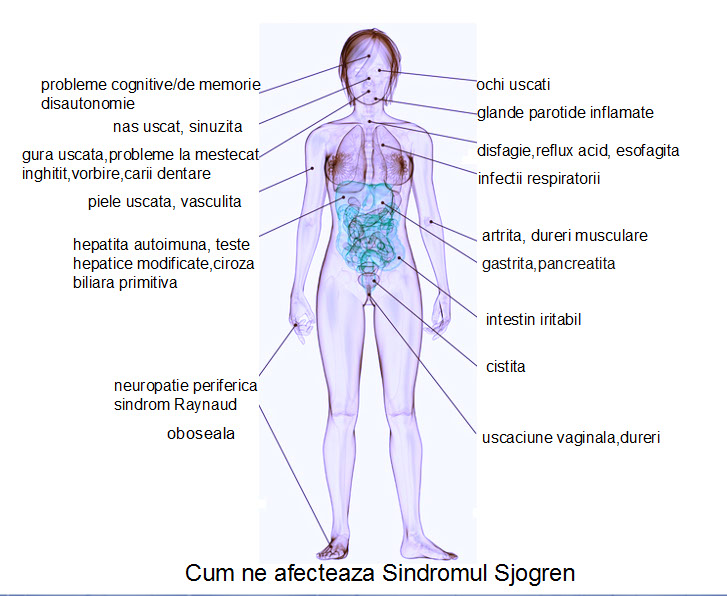 articulațiile bolii sjogrenului