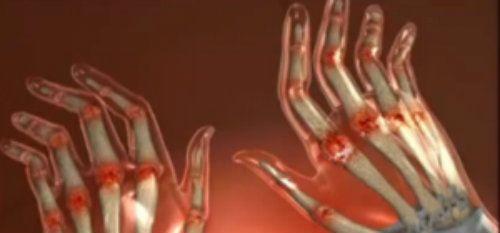 articulațiile doare și mâinile sunt amorțite