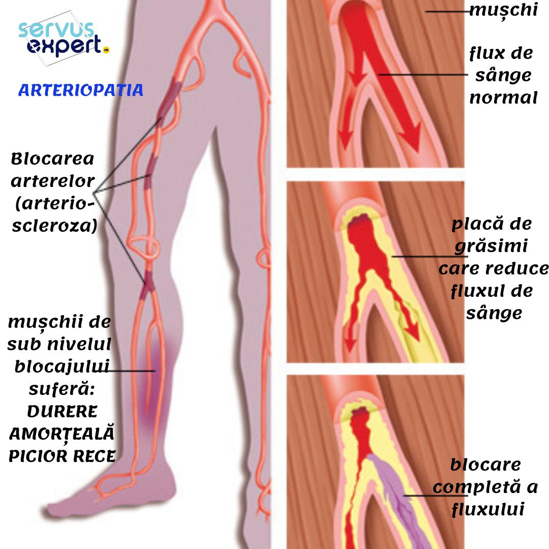 Venele ies și articulațiile doare, Simptomele durerii la nivelul articulațiilor mici
