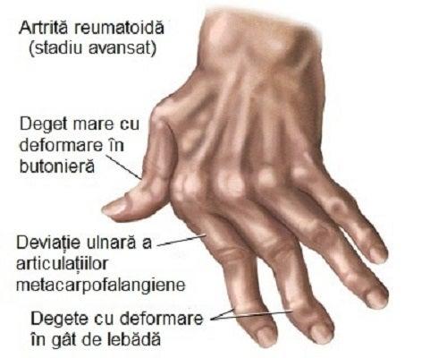 artrita articulațiilor degetelor mâinii durere în toate articulațiile și crăpături