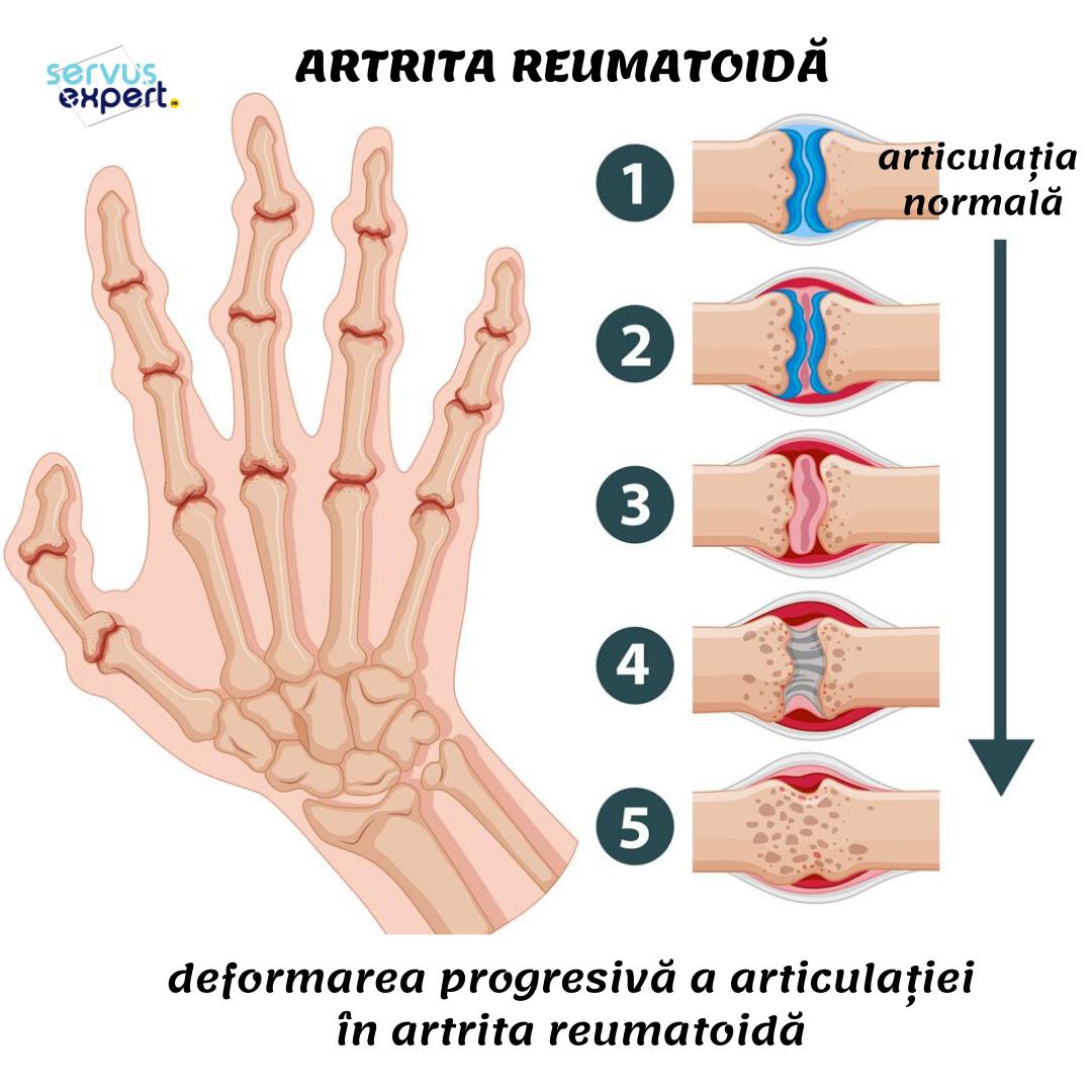 tratamentul cartilajului la genunchi articulații pentru a trata