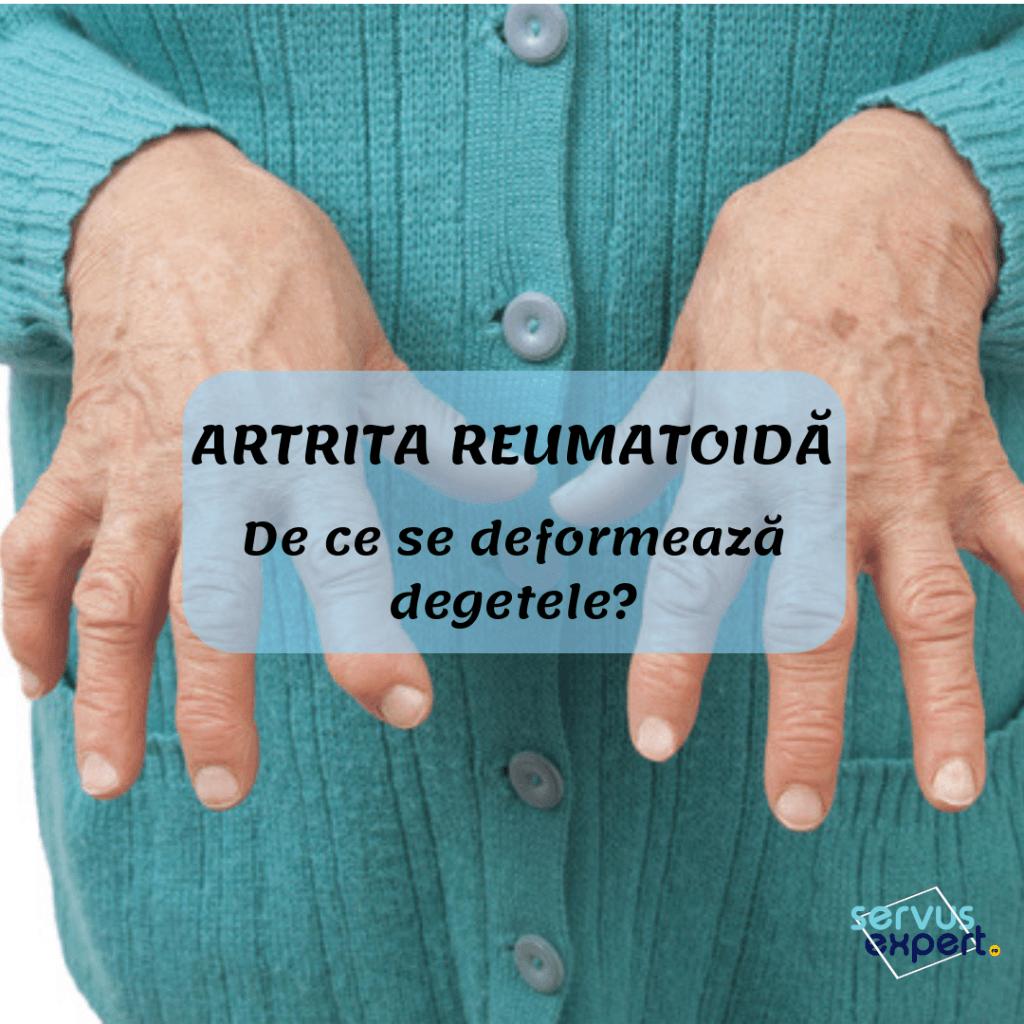 artrita articulațiilor mari