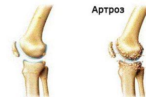 Artroza gradului 2 al articulațiilor piciorului. Artroza gradului 1 al articulațiilor genunchiului