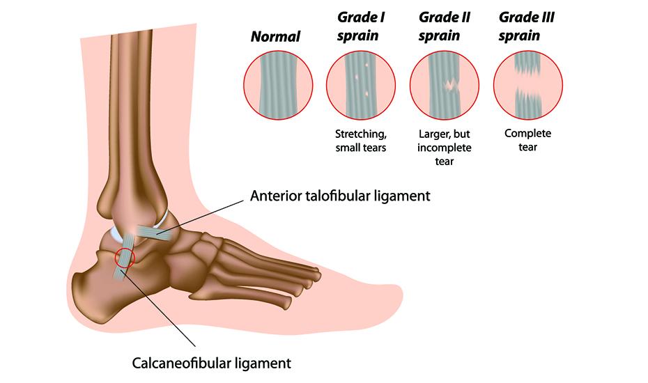 artroza de gradul I al articulației gleznei
