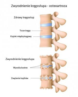 artroza deformantă a articulațiilor sacroiliace