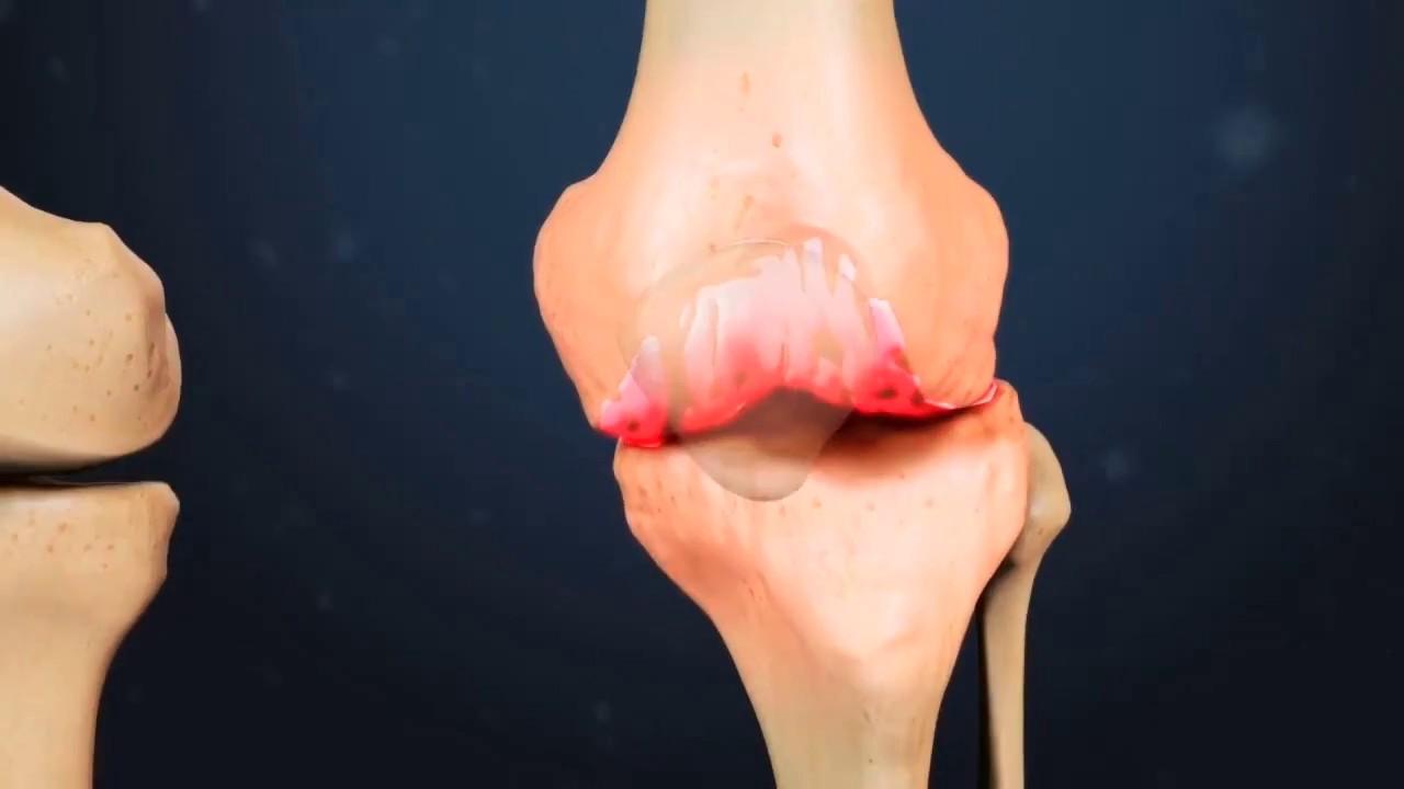 hernie dureri de sold articulațiile rănesc vârsta fragedă
