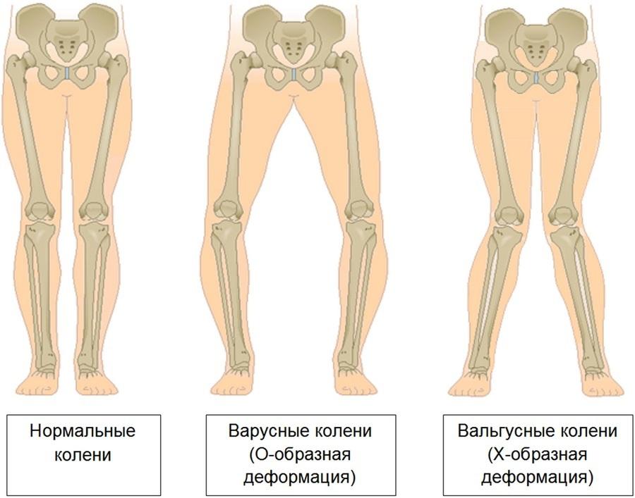 boala articulației picioarelor la bătrânețe