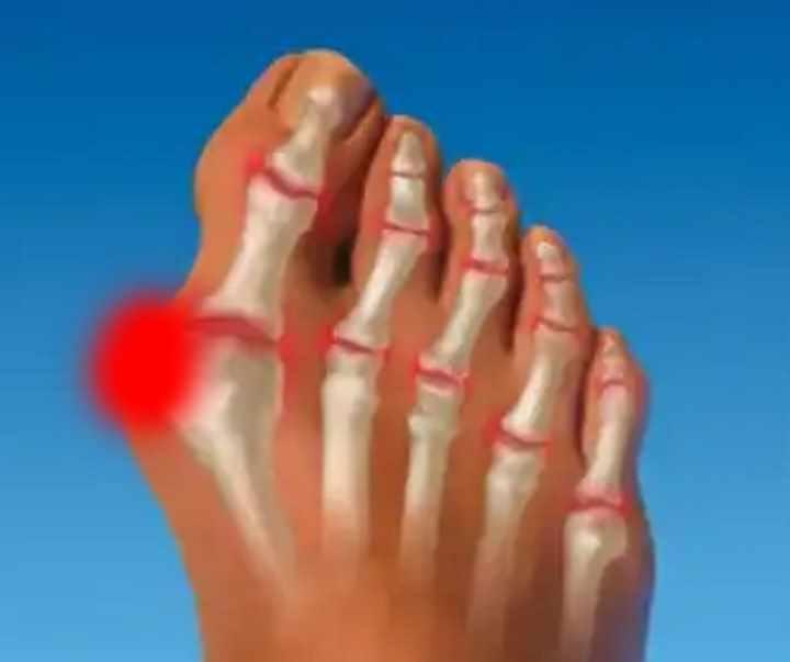 inflamația articulației primului deget