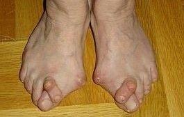 artrita reumatoidă a articulației piciorului articulația șoldului drept noaptea
