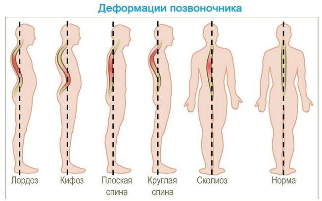 boli infecțioase ale articulațiilor șoldului