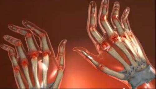 durere în diverse articulații tratamentul durerii severe la genunchi