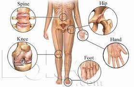 dureri de șold și diabet