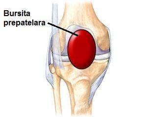 Tratamentul artrozei retropatelare